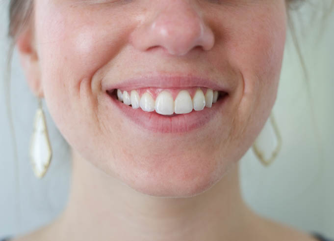 Teeth Whitening, Brilliant Smile, At Home Teeth Whitening, Beauty, Health