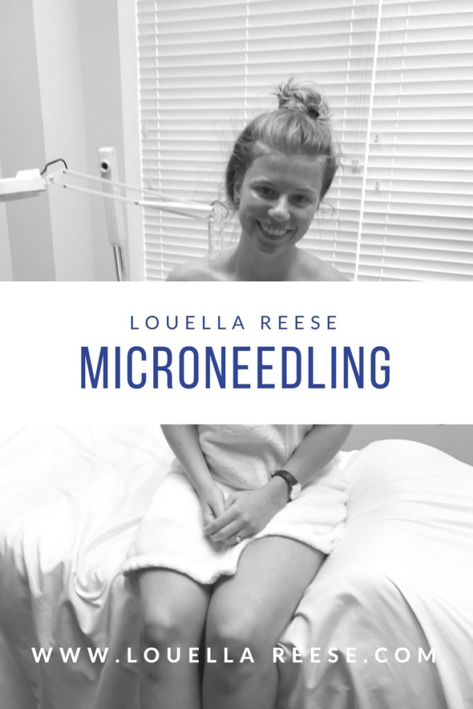 Microneedling Experience | Louella Reese | Charlotte Life & Style Blog
